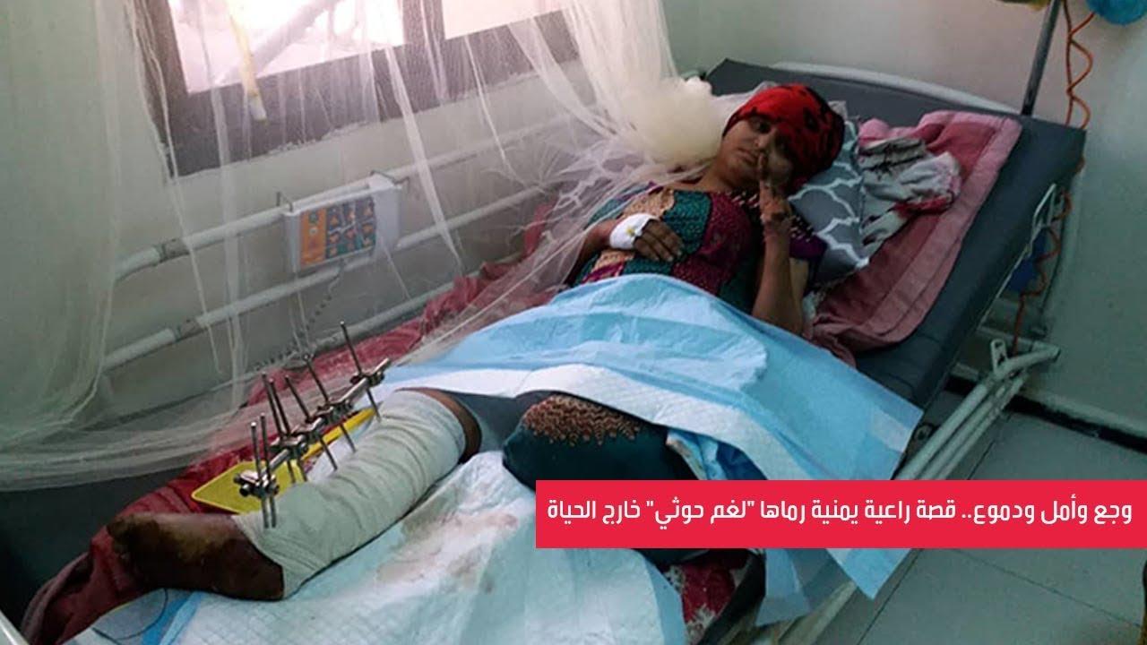 """راعية يمنية رماها """"لغم حوثي"""" خارج الحياة"""