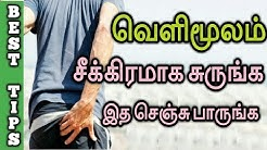 How to cure piles naturally in Tamil | Home Remedy for piles | Best solution