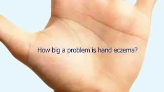 The Impact Of Hand Eczema | Hand Eczema Treatment | Products For Eczema