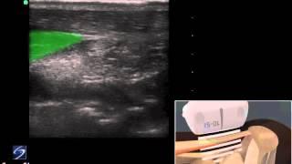 3D-пособие: ультразвуковое исследование ахиллова сухожилия— SonoSite