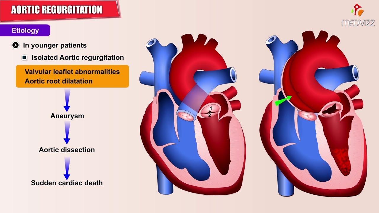 Aortic regurgitation / Aortic insufficiency : Etiology ...
