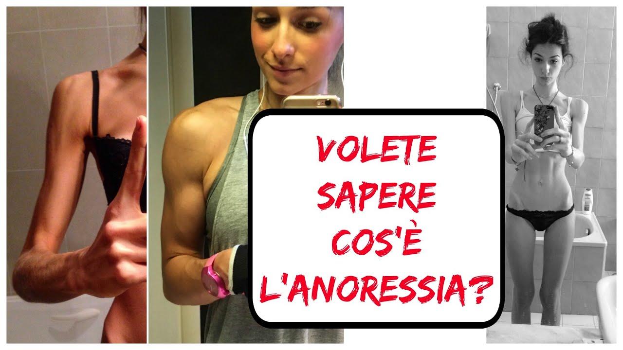 Volete sapere cos l anoressia dall anoressia alla vita for Cos e l antonomasia