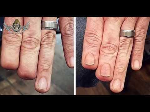 اخفاء اثار الجروح والتشوهات بالتاتوة Tattoo Cover Up