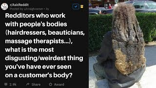 Hairdressers/masseurs  Share Most Disgusting Things Seen On Customers Body