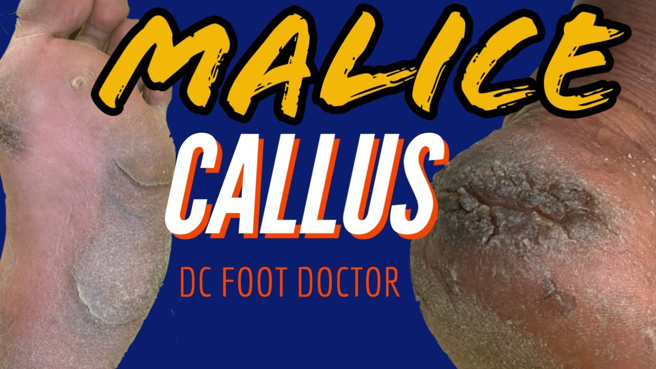 Malice Callus: Severe Calluses and Fissures  (Size 13 Feet)