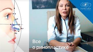 Ринопластика -  пластика носа. Все о ринопластике - закрытая ринопластика, подготовка, реабилитация(, 2018-11-14T11:08:31.000Z)