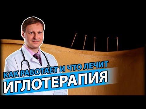 ИГЛОУКАЛЫВАНИЕ | Невролог объясняет как работает рефлексотерапия