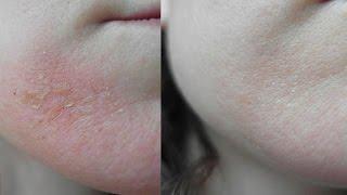 Экзема. Восстановление кожи за неделю после сильного обострения/Видео-дневник