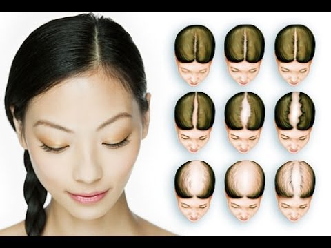 fast-hair-growth-treatment---13-factors-that-affect-the-rate-of-hair-growth