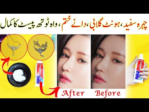 5-magical-beauty-hacks-&-life-hacks-using-toothpaste--pimples,dark-lips-,-blackheads-&-rusty-jewelry