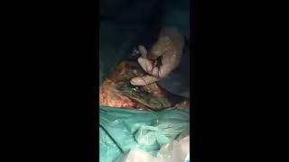 Lateral da nervo do cutâneo femoral distribuição dor