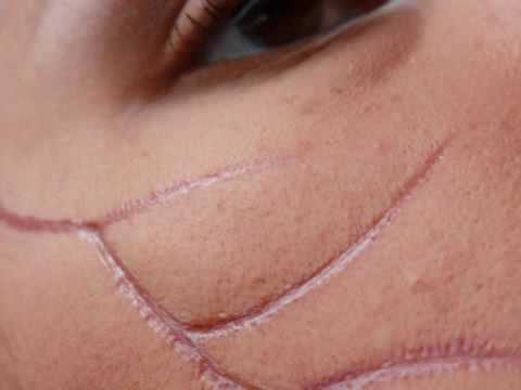 how to not get a scar from a cut