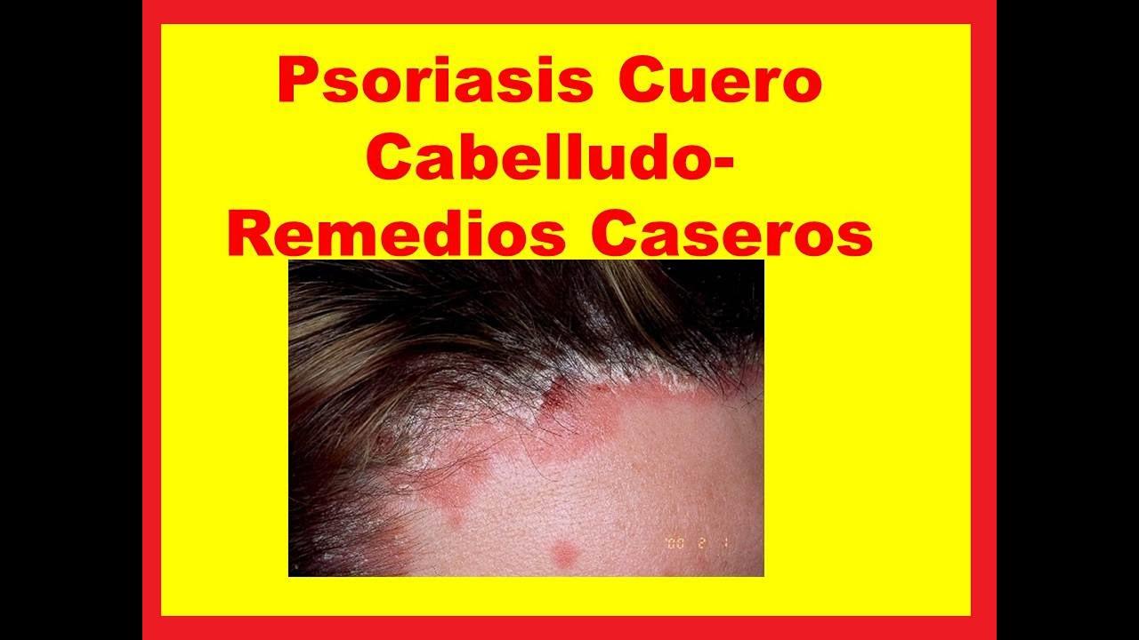 Cómo tratar la psoriasis del cuero cabelludo