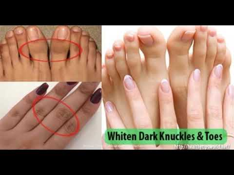 this-is-how-you-can-get-rid-of-dark-knuckles-and-toes-easily-at-home