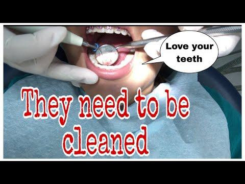 CLEANING TEETH WITH BRACES || SCALING || FEAT. ROYAL DENTAL CENTER KUWAIT