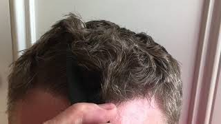 8.5 Months Comb Through - FUE Hair Transplant