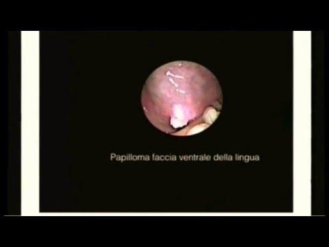 Papilloma virus immagini, Virus hpv verruche