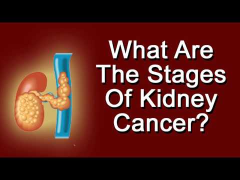 What Are The Stages Of Kidney Cancer?