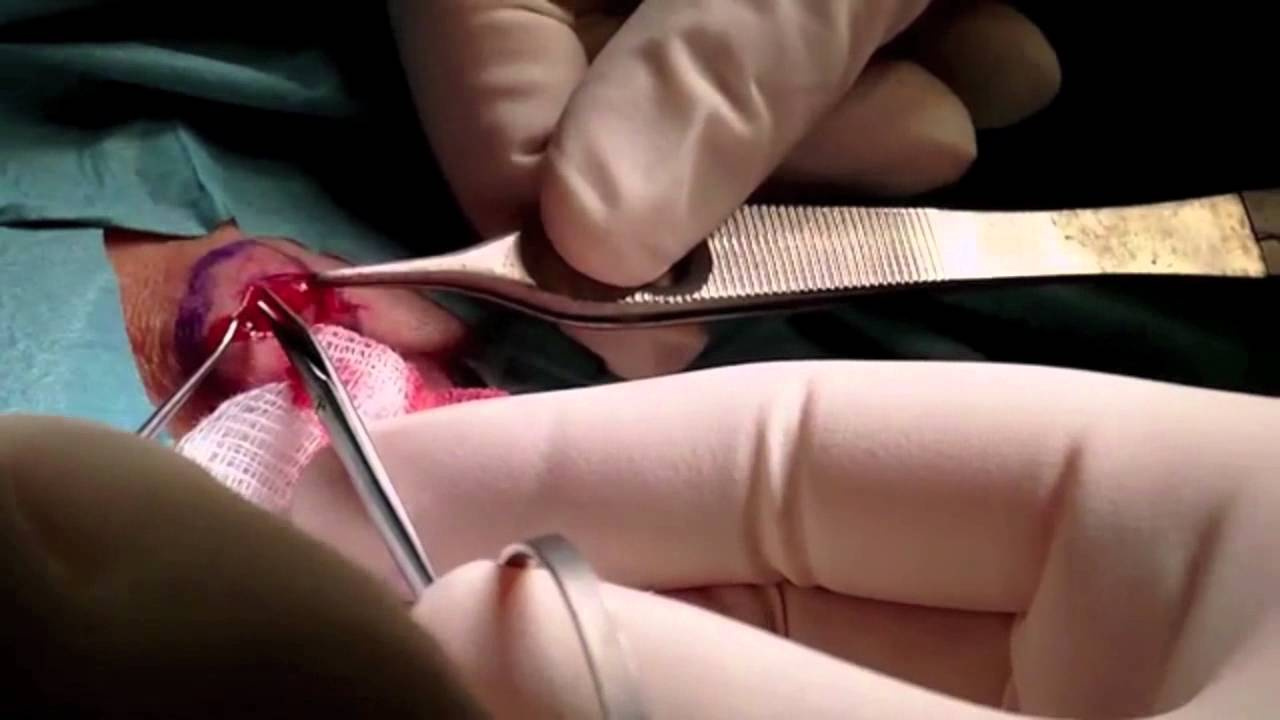 lipomi sul pene