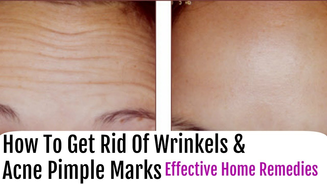 How To Get Rid Of Wrinkle And Acne Scars Overnight