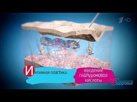 Интимная контурная пластика. Здоровье.(05.11.2017)