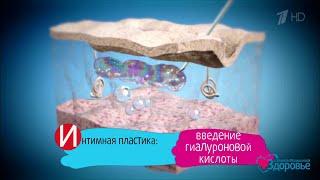 Здоровье  Интимная контурная пластика (05 11 2017)