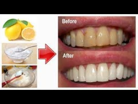 Ketahuilah Inilah Cara Putihkan Gigi Pakai Kulit Jeruk Atau Garam