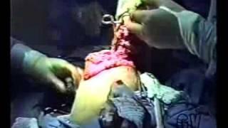 1 - AMPUTAÇÃO DE PERNA - CÂNCER - NICOTINA DO CIGARRO