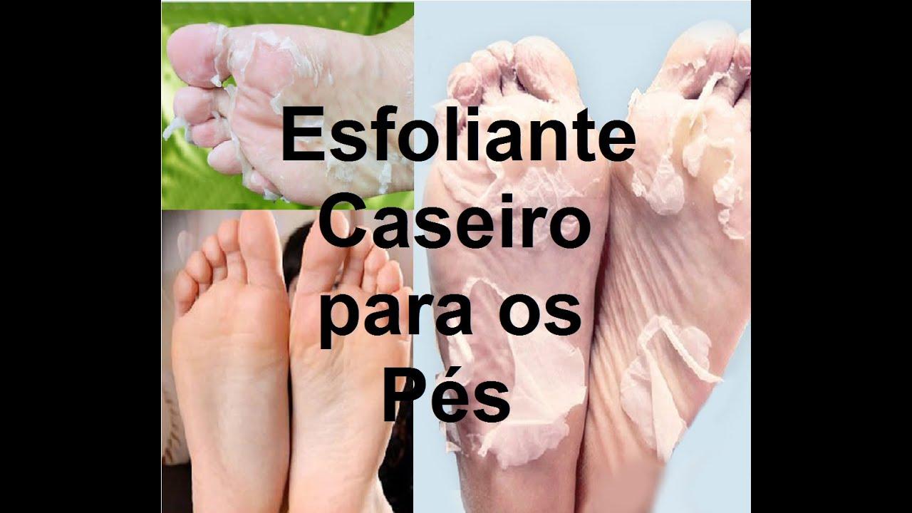 esfoliante para os pés caseiro