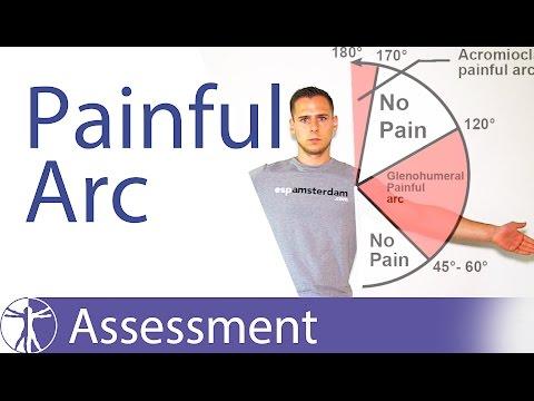 Painful Arc Syndrome | Shoulder Impingement