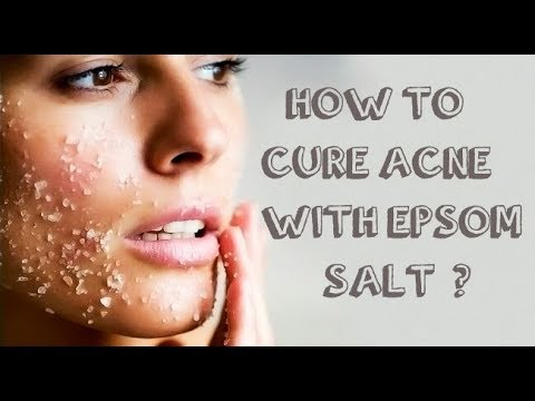 HOW TO TREAT ACNE WITH EPSOM SALT? 10 BEST RECIPES.