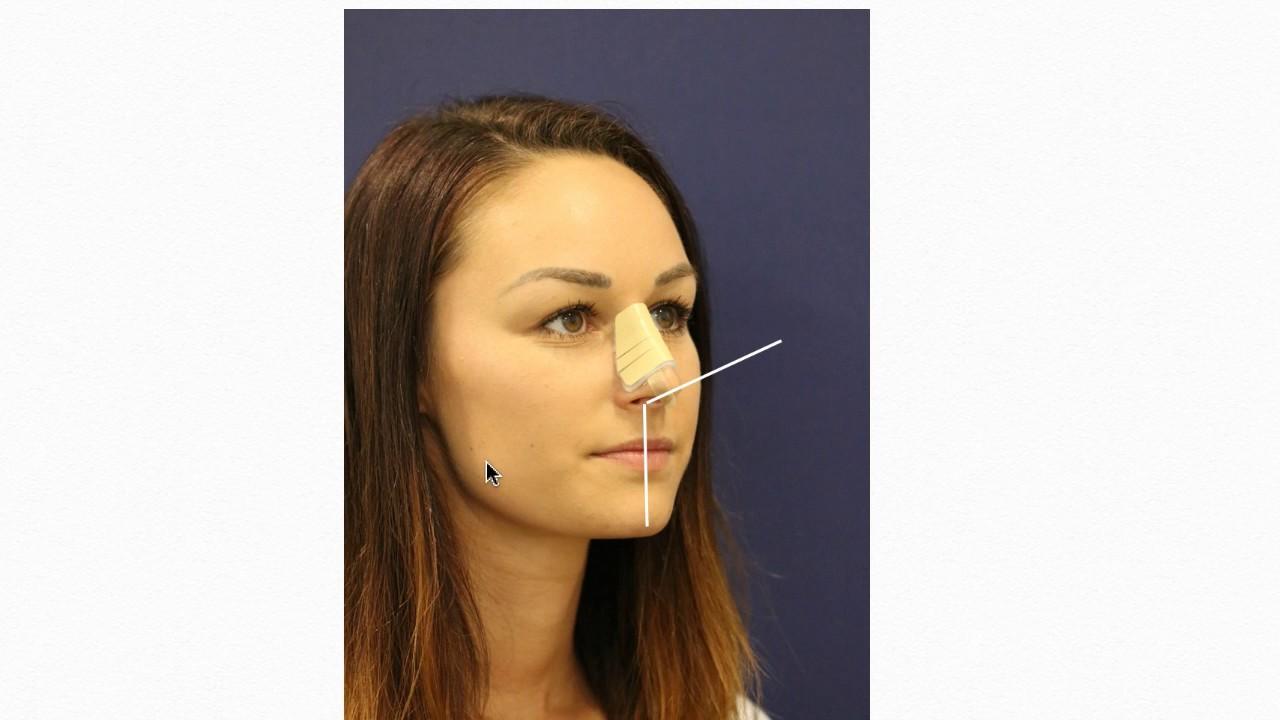 Nasen Op Nachbehandlung Forum Klinik - YouTube