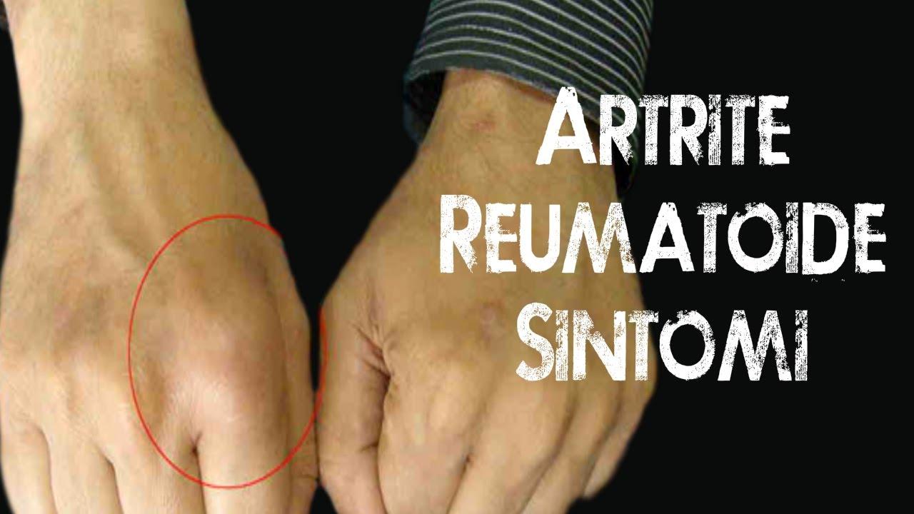 Vitamine artrite reumatoide