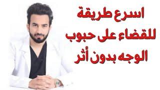 اسرع طريقة للقضاء على حب الشباب بدون أثر - دكتور طلال المحيسن