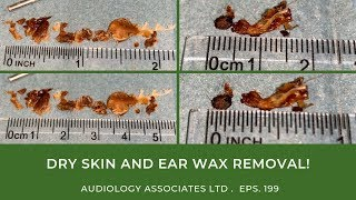 DRY SKIN AND EAR WAX REMOVAL - EP199