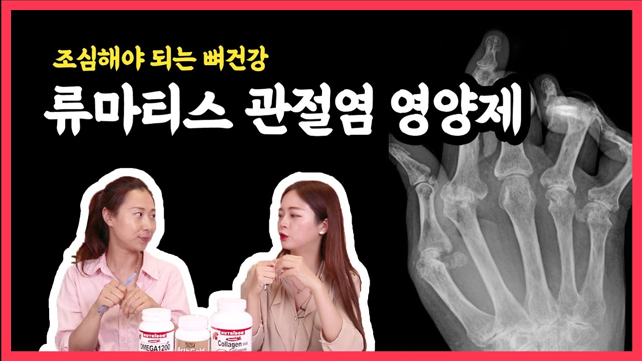 [류마티스 관절염] 관절의 염증, 열감, 통증을 줄여주는 영양제 조합은?