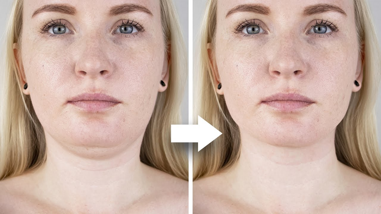 62 How To Perform Chin Liposuction In Photoshop Youtube Chin Liposuction Double Chin Photoshop
