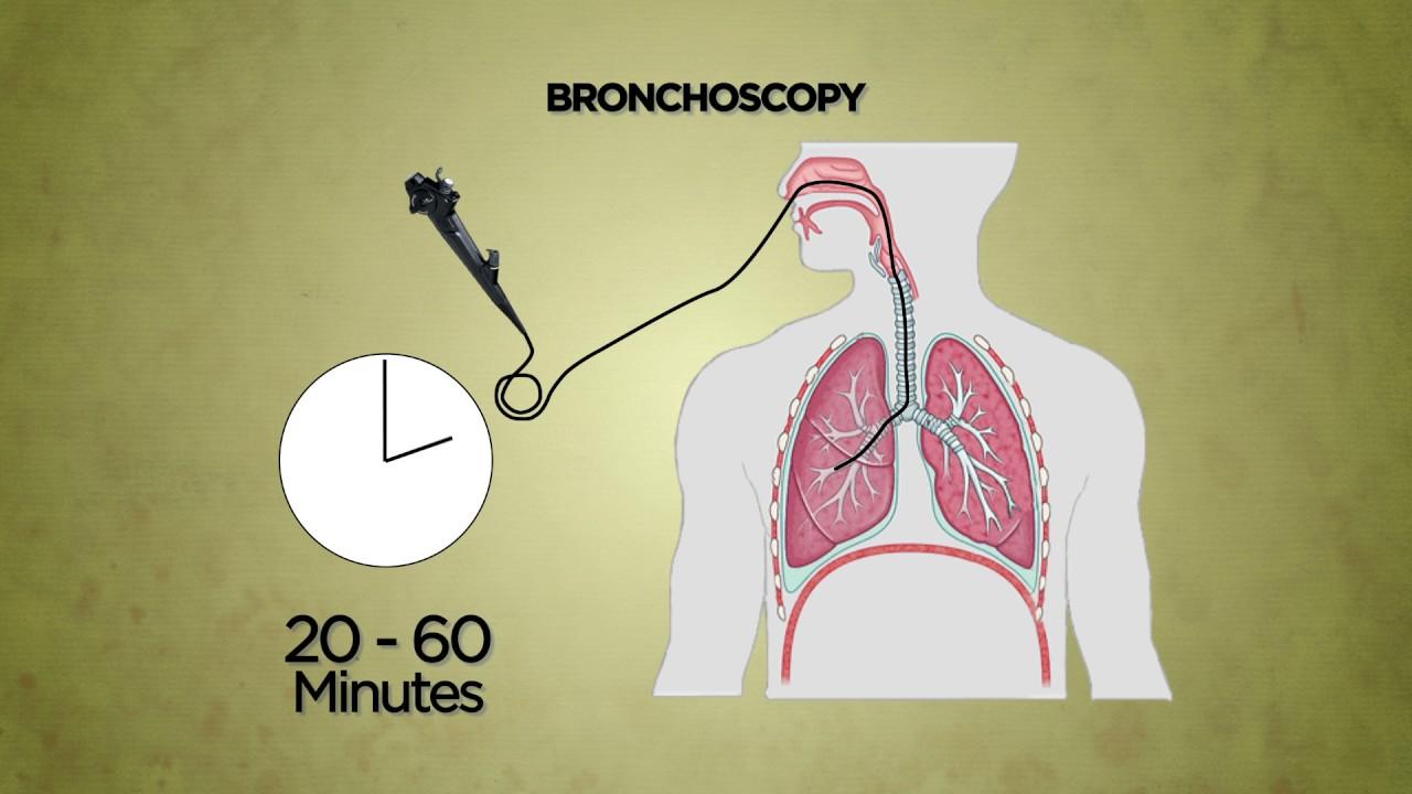 Bronchoscopy - YouTube
