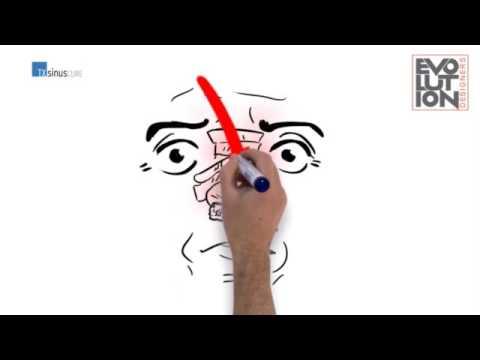 Whiteboard Animation By Evolution Designers/Studio