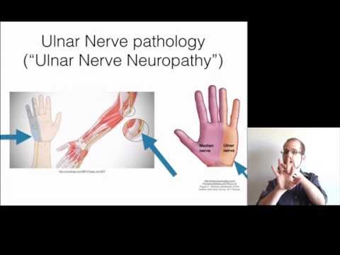 Cubital Tunnel Syndrome | eOrthopod.com |Hand And Pinky Numb