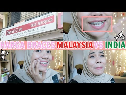 DAILY VLOG: HARGA BRACES INDIA VS MALAYSIA