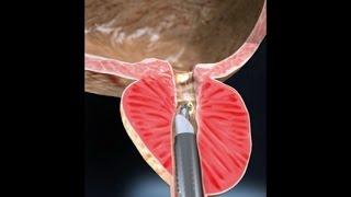 Ressecção Endoscópica de Próstata - RTU