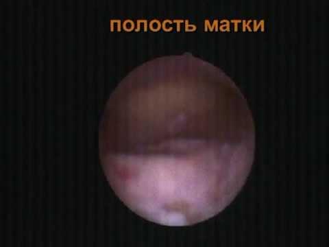 Хронический эндометрит вместо полипа. Гистера точнее.