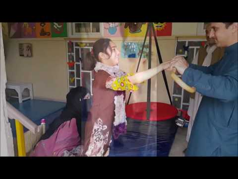 Showing movement types of Cerebral Palsy
