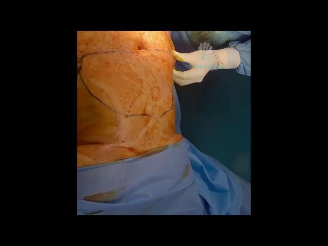 Advance Laser Liposuction