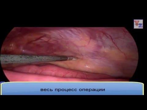 Хирургия операция видео грыжа thumbnail