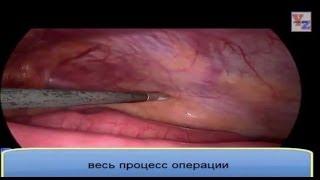 Операция паховая грыжа