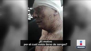 Desolla a su esposa en la CDMX tras discusión | Noticias con Ciro Gómez Leyva