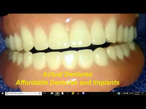AFFORDABLE  DENTURES AND IMPLANTS WILSONVILLE, OREGON