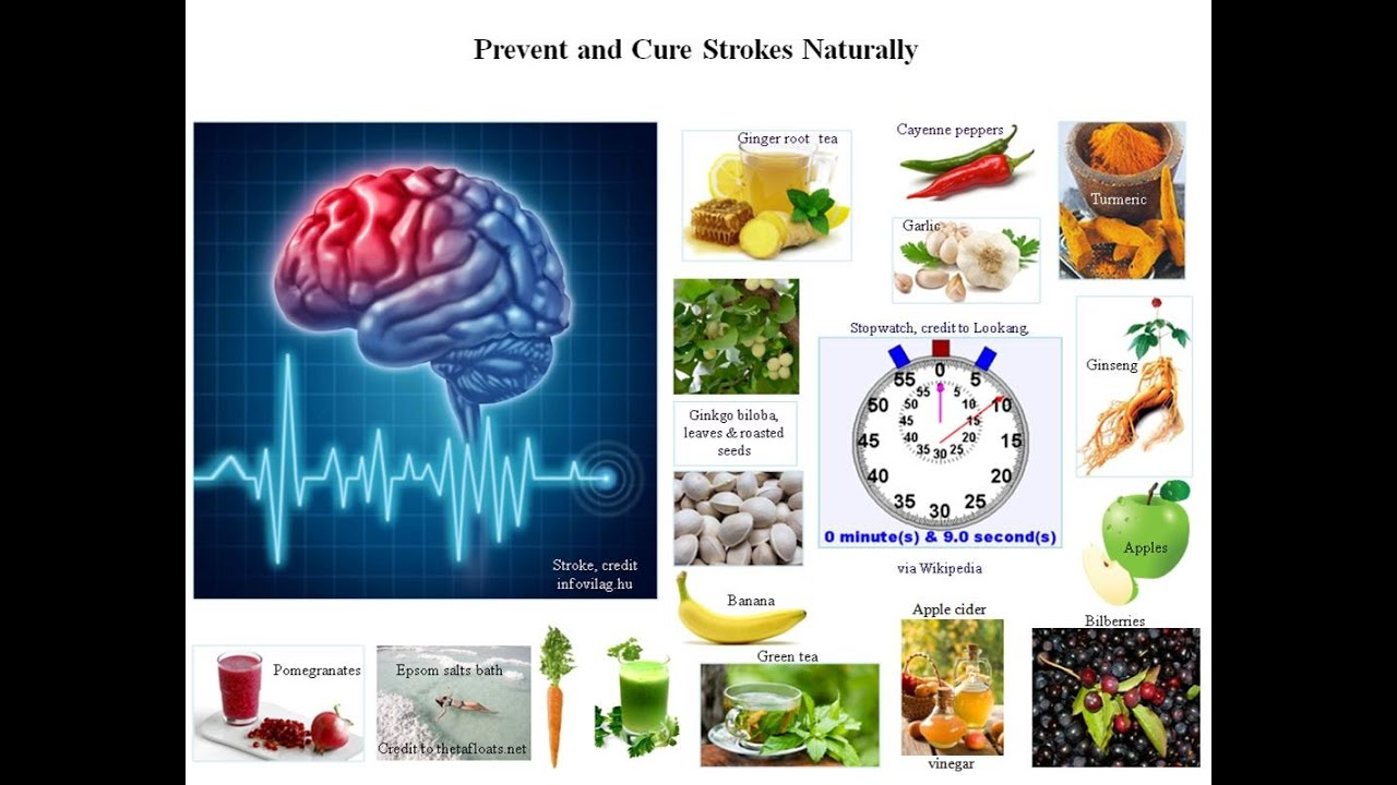 Brain stroke recovery: nutrition and exercise